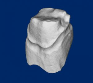 Scan of a tooth for a dental application